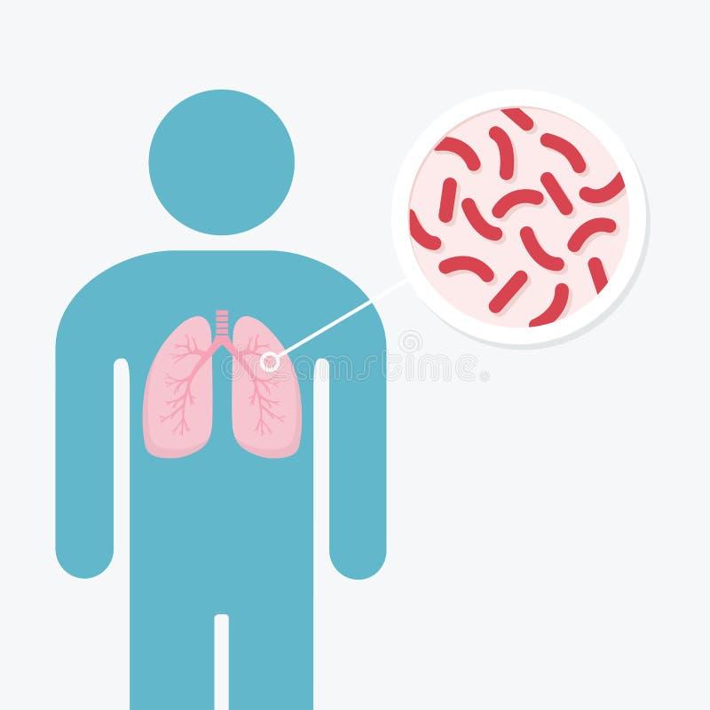 Menselijk de anatomiediagram van de longziekte Longen van besmette persoon Het gevaar van tuberculosebacteriën vector illustratie