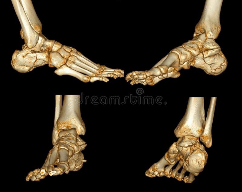 Menselijk voetaftasten vector illustratie