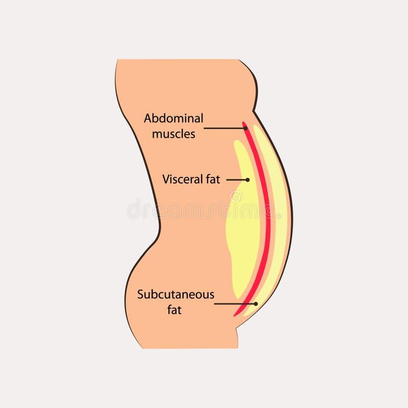 Menselijke buikspieren Ocation van diepgeworteld die vet binnen buikholte wordt opgeslagen Medisch diagram stock illustratie