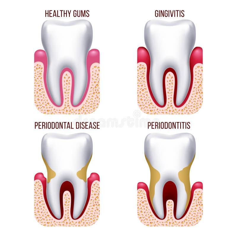 Menselijke gomziekte, gommen het aftappen Tand, mondelinge de zorg vectorinfographics van de tandpreventie vector illustratie