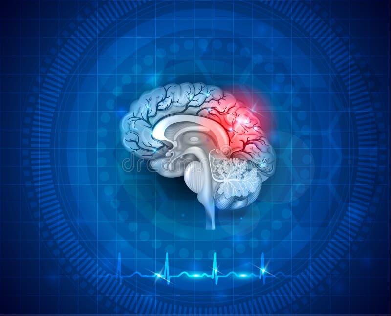 Menselijke hersenenschade en behandeling royalty-vrije illustratie