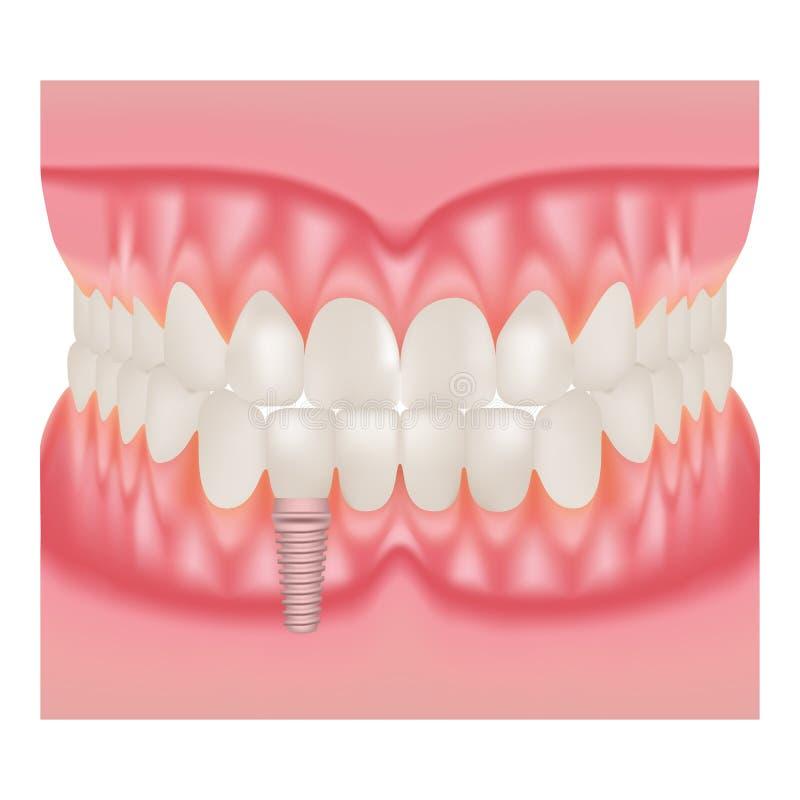 Menselijke Implant van Kaak Modelwith teeth and Installatie van TanddieImplants op een Witte Achtergrond wordt geïsoleerd Vector  royalty-vrije illustratie