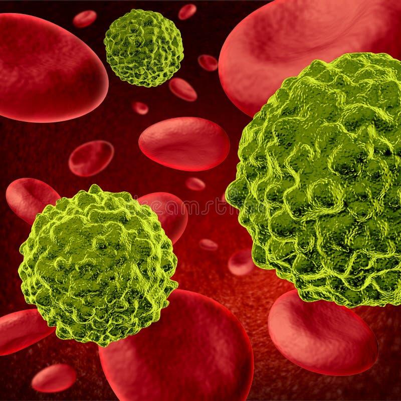 Menselijke kanker royalty-vrije illustratie
