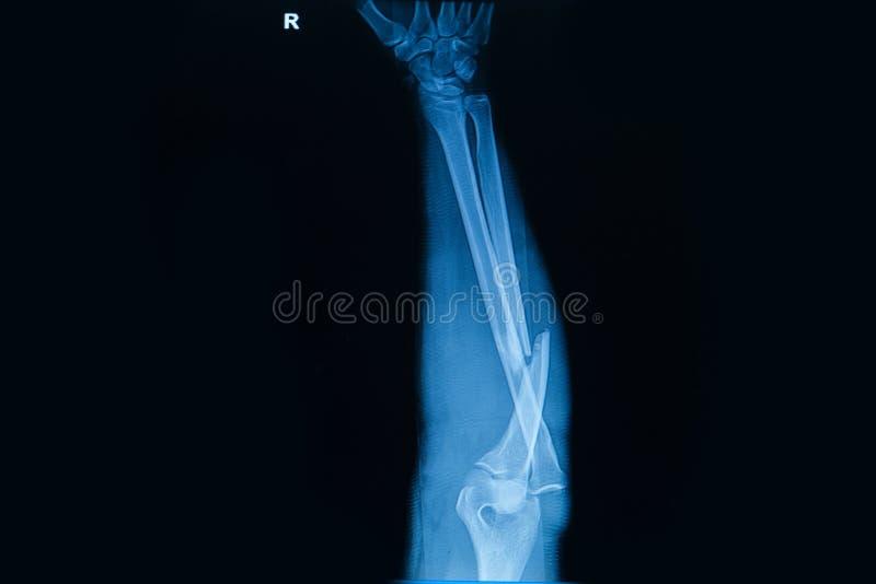 menselijke röntgenstralen die breuk van straalbeen tonen stock foto's