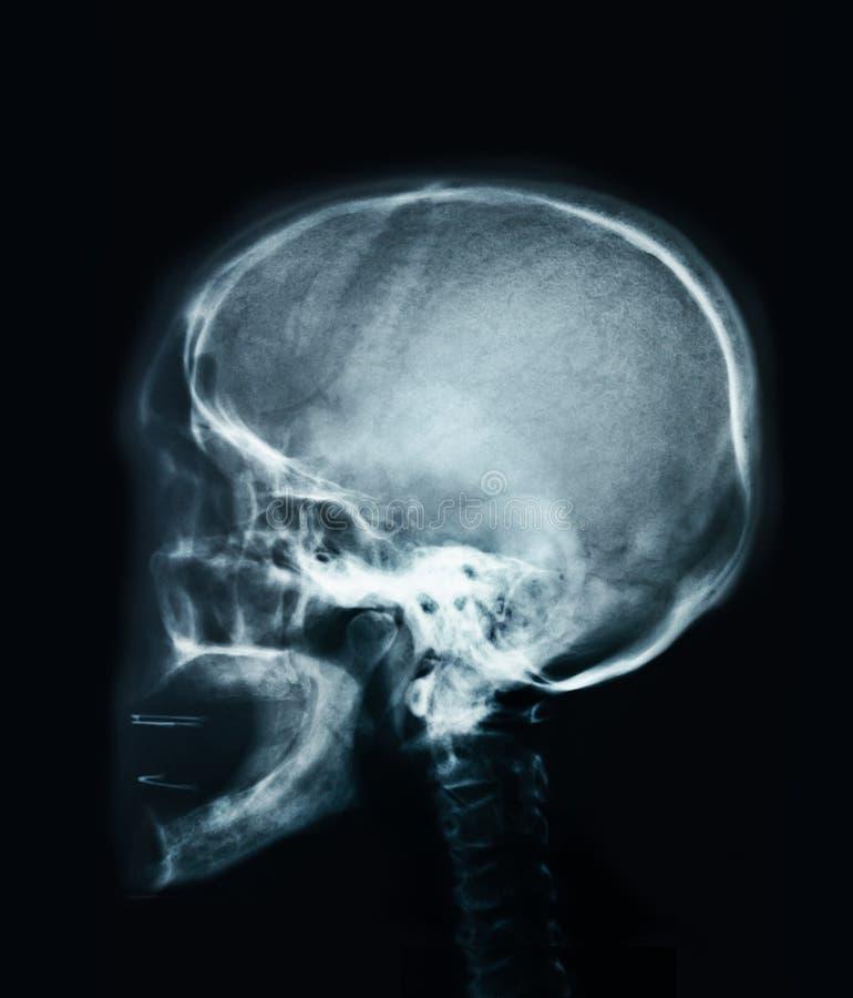 Menselijke schedelröntgenstraal stock fotografie