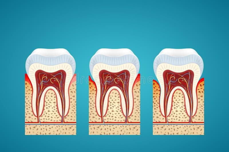 Menselijke tand drie in schema met gomziekte vector illustratie