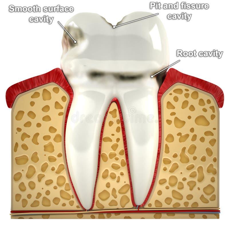 Menselijke tand, met types van bederf (3d model) vector illustratie