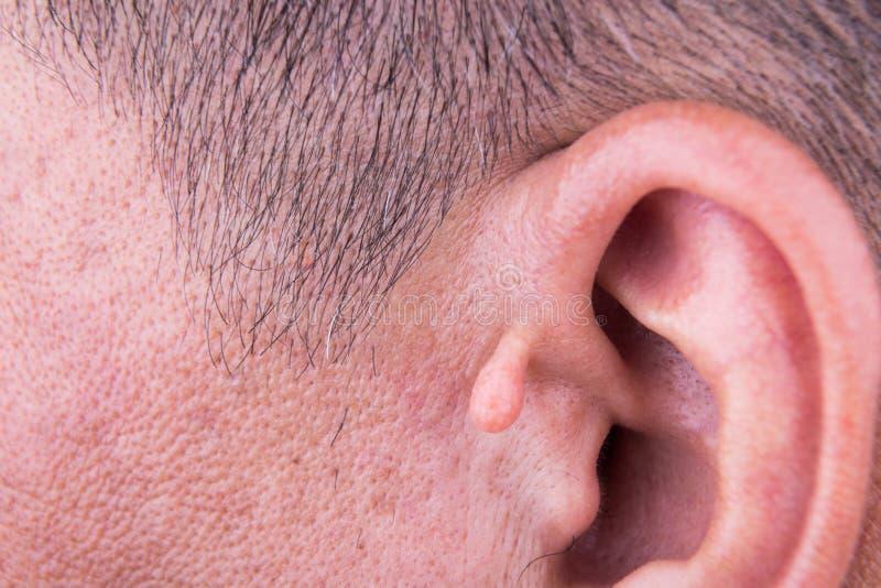 Menselijke verandering met de extra groei op oor royalty-vrije stock foto