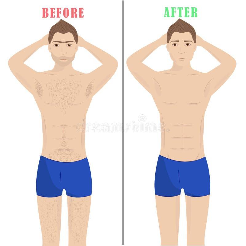 Mensenontharing De Verwijdering van het laserhaar Mannelijke epilation royalty-vrije illustratie