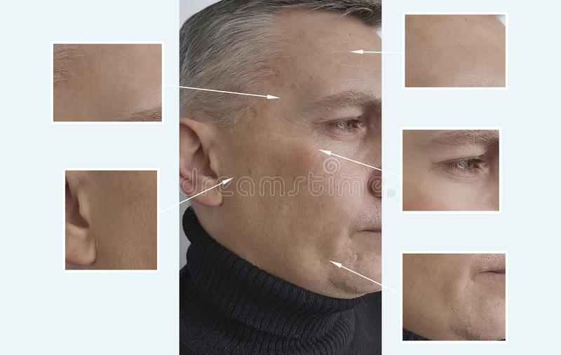 Mensenrimpels die before and after pigmentatie van de procedures de anti-ageremoval acne verouderen royalty-vrije stock foto