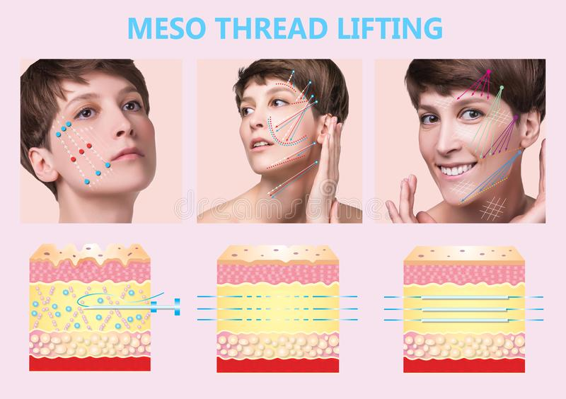 Meso thread Lift. Young female with clean fresh skin. Beautiful woman. face and neck. Lifting by threads concept royalty free illustration