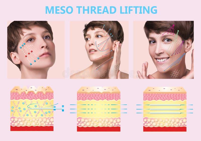 Mesofaden Aufzug Junge Frau mit sauberer frischer Haut Schöne Frau Gesicht und Hals lizenzfreie abbildung