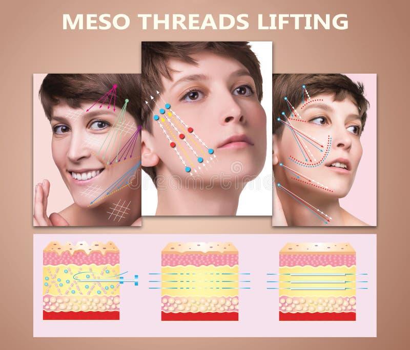 Mesofaden Aufzug Junge Frau mit sauberer frischer Haut Schöne Frau Gesicht und Hals lizenzfreies stockbild