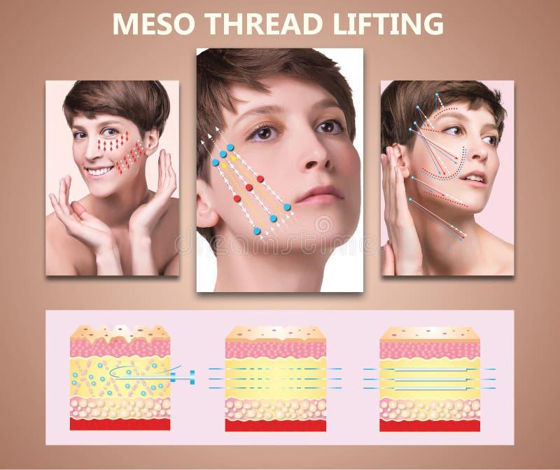 Mesofaden Aufzug Junge Frau mit sauberer frischer Haut Schöne Frau Gesicht und Hals stockbild