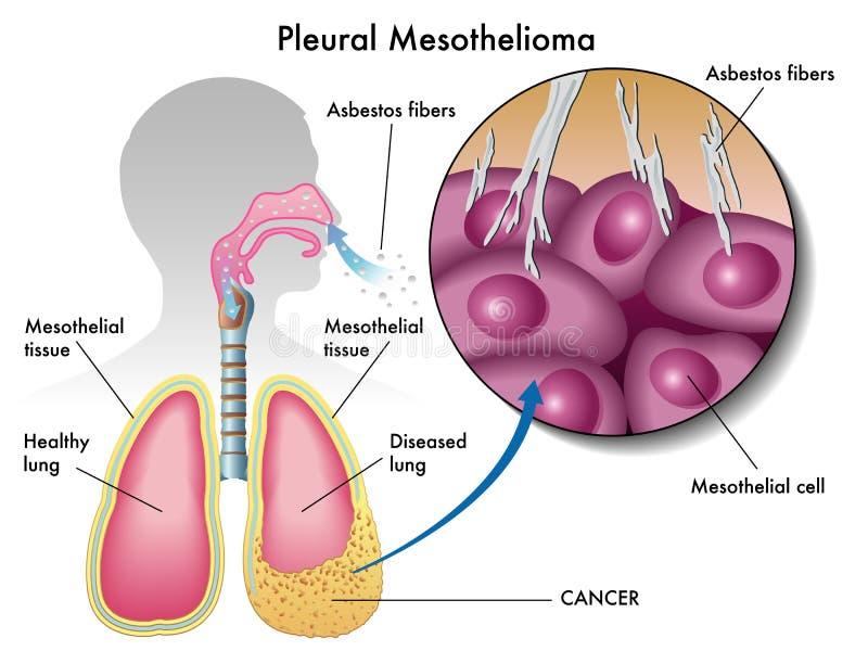 Mesotelioma pleural ilustração stock