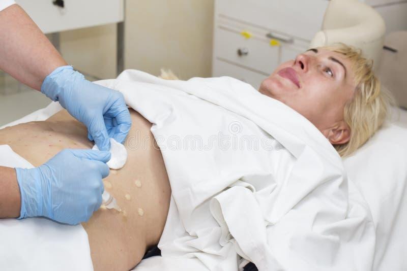 Mesotherapy Cellulite royaltyfri fotografi