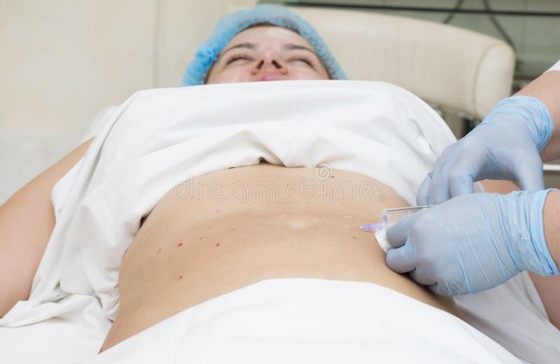 Mesotherapy Cellulite royaltyfria bilder
