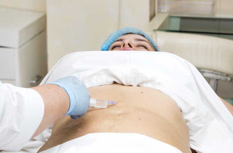 Mesotherapy Cellulite arkivbilder