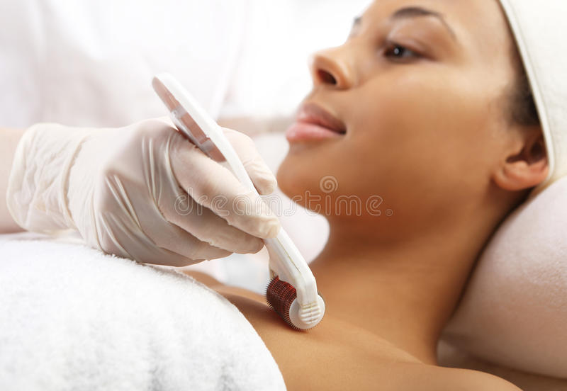 Mesotherapy rol microneedle stock foto