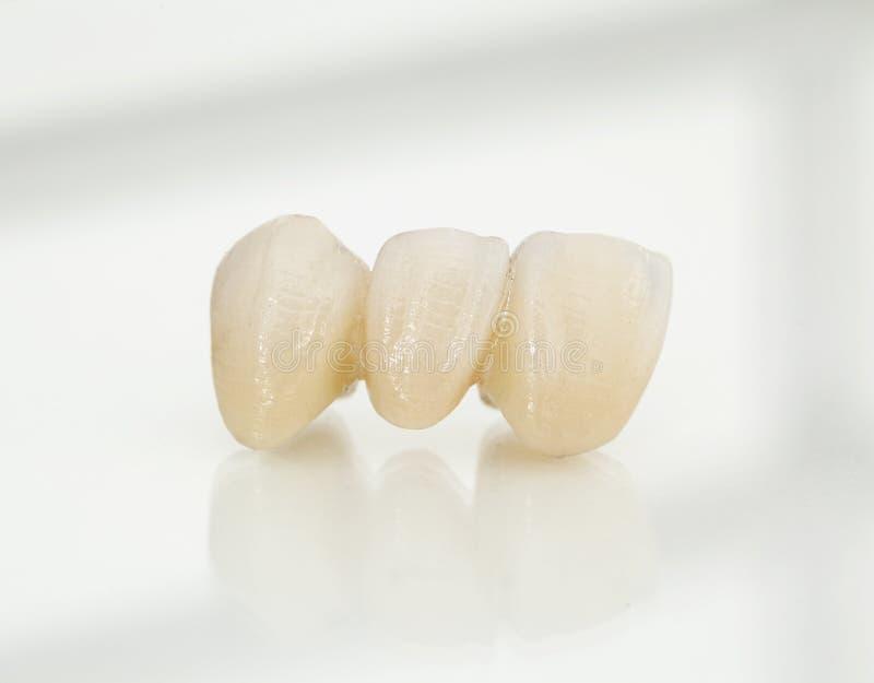 Metaal vrije ceramische tandkronen royalty-vrije stock foto