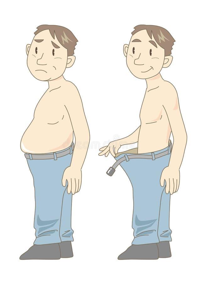 Metabolisches Syndrom vor und nach Mittelalter lizenzfreie abbildung