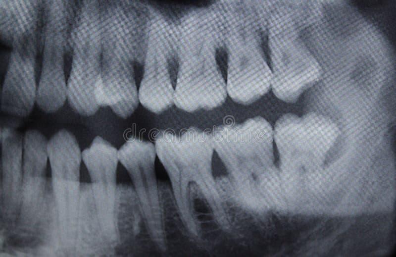Metade direita do raio X dental fotos de stock royalty free