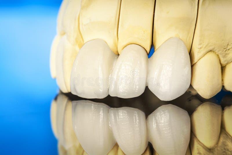 Metal bezpłatne ceramiczne stomatologiczne korony zdjęcia royalty free