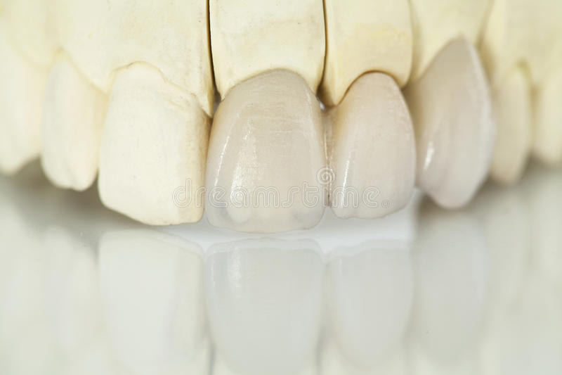 Metal bezpłatne ceramiczne stomatologiczne korony obrazy royalty free