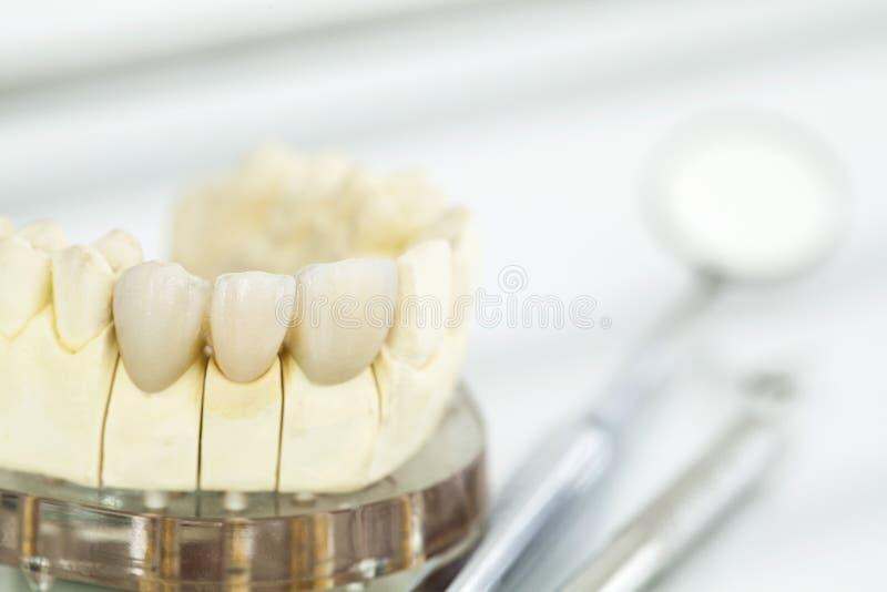 Metal free ceramic dental crowns royalty free stock photography