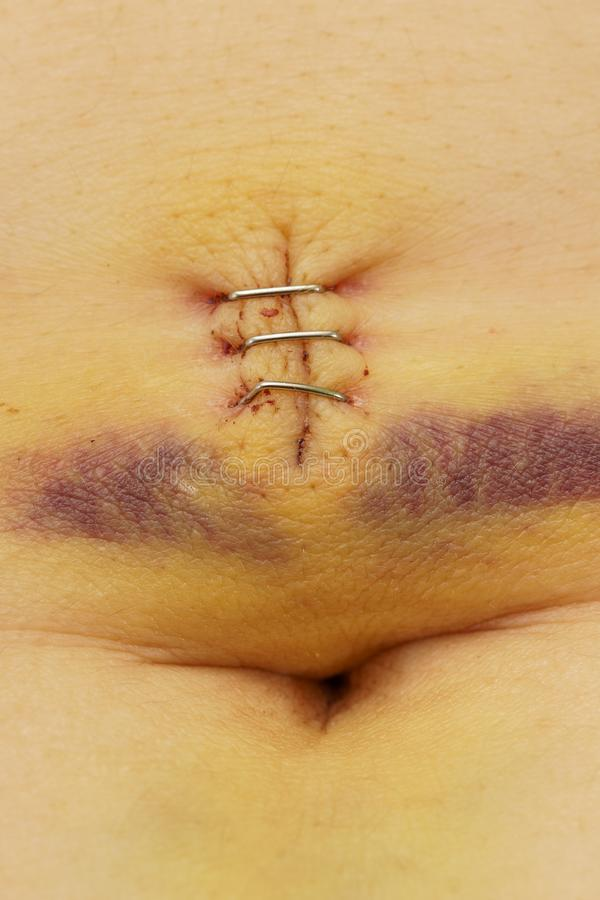 Metal staples in a scar with bruise and belly button stock image