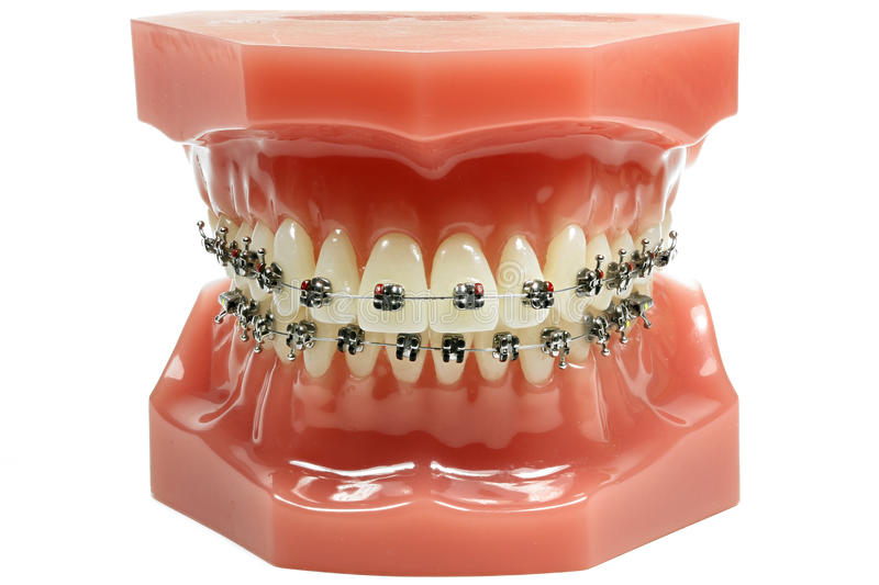 Metal wired dental braces royalty free stock images