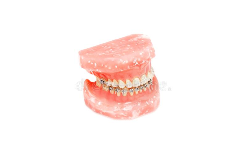 Metall wire dental braces on teeth orthodontic model, isolated stock images