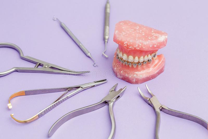Metall wire dental braces on teeth orthodontic model stock photography