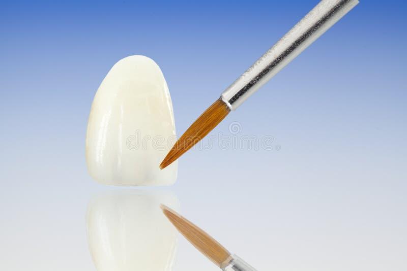 Metallfreie keramische zahnmedizinische Kronen lizenzfreie stockbilder