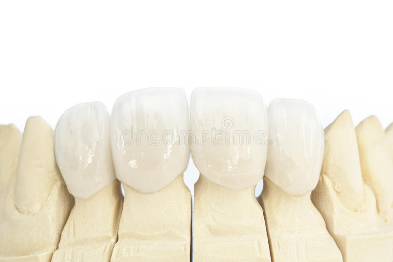 Metallfreie keramische zahnmedizinische Kronen stockfoto
