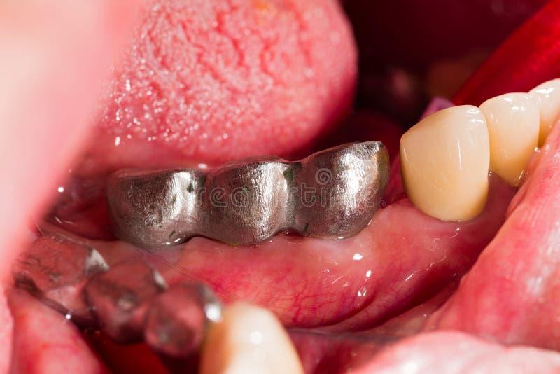 Metallram på tand- implantat fotografering för bildbyråer