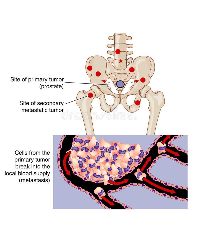 Metastase royalty-vrije illustratie