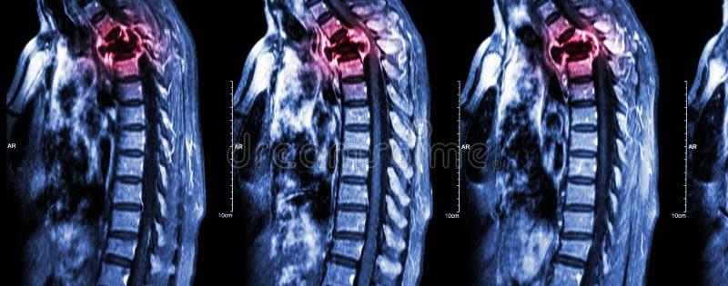 Metastasi della spina dorsale (cancro sparso alla spina dorsale toracica) fotografie stock
