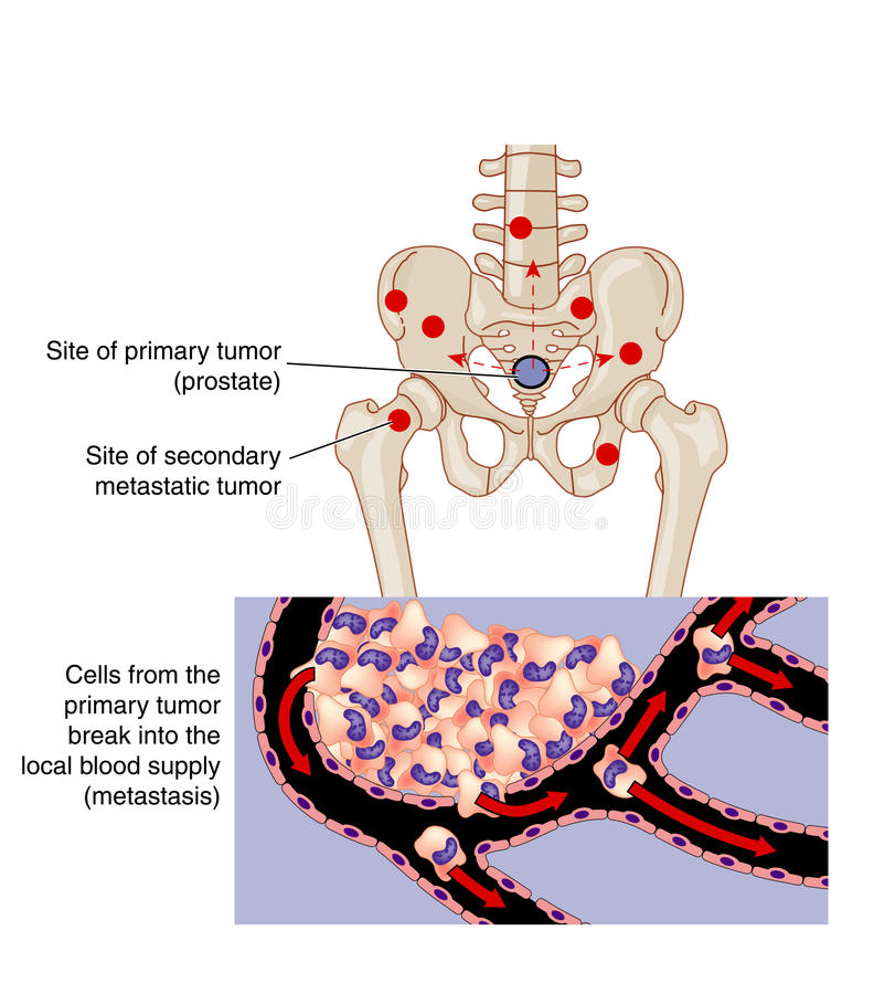 Metastasis. Drawing of the spread of tumor cells from primary prostatic cancer to various bone sites royalty free illustration