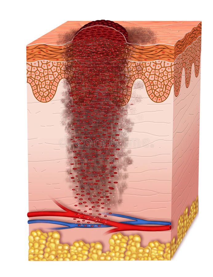 Metastasis royaltyfri illustrationer