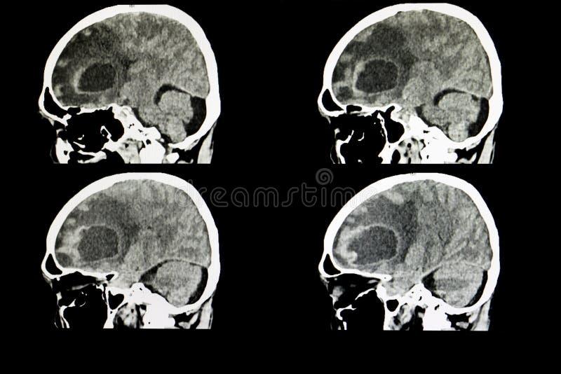 metastatic hjärntumör royaltyfri bild