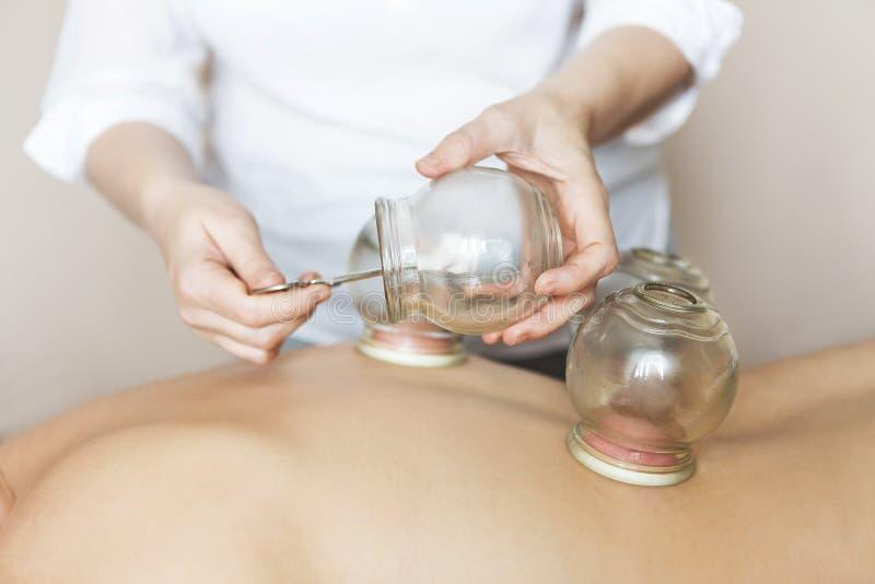 Mettez le feu aux tasses mettantes en forme de tasse dessus de retour du patient féminin dans le thera d'acuponcture image libre de droits