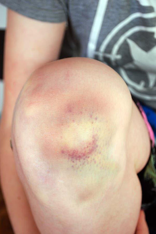 Meurtrissez de la chute sur le genou du ` s d'enfant image libre de droits