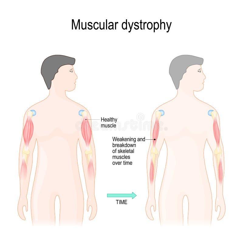 Mięśniowy dystrophy ilustracja wektor
