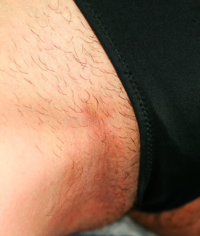 Micosi nell'inguine, psoriasi, dermatite, eczema immagine stock
