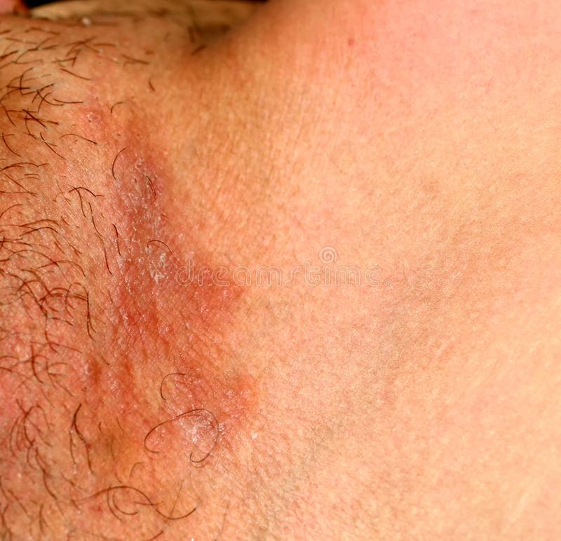 Micosi nell'inguine, psoriasi, dermatite, eczema fotografia stock