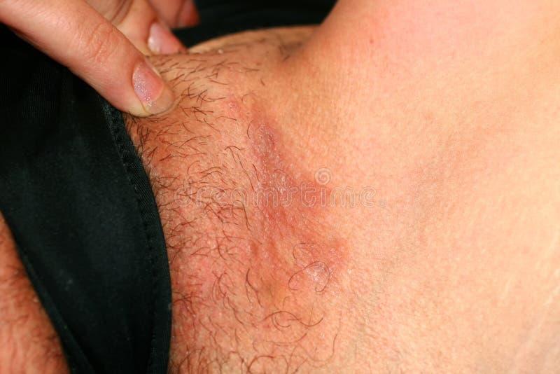 Micosi nell'inguine, psoriasi, dermatite, eczema fotografie stock