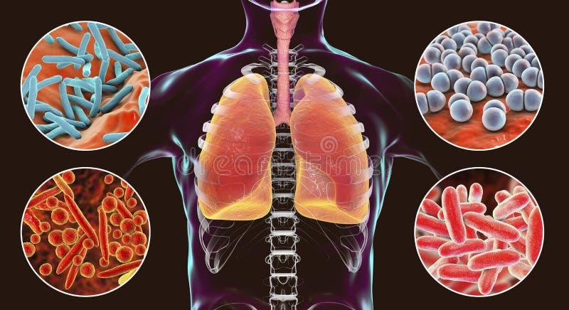 Micróbios patogênicos respiratórios humanos ilustração stock