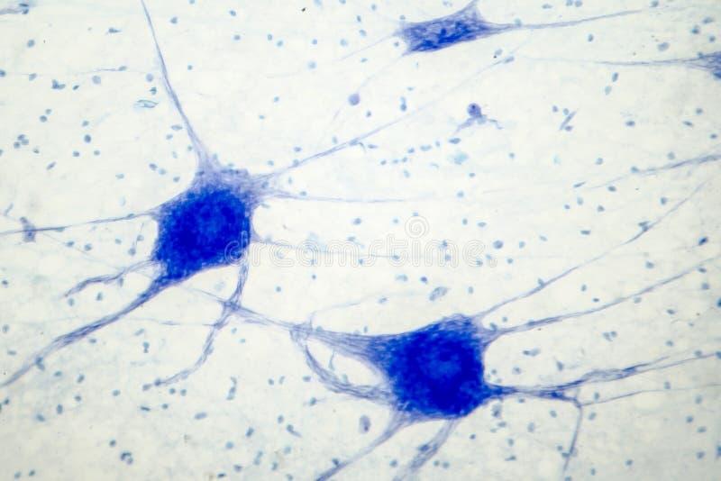 Micrografo leggero del tessuto di cervello umano che mostra i neuroni e le cellule glial fotografia stock libera da diritti