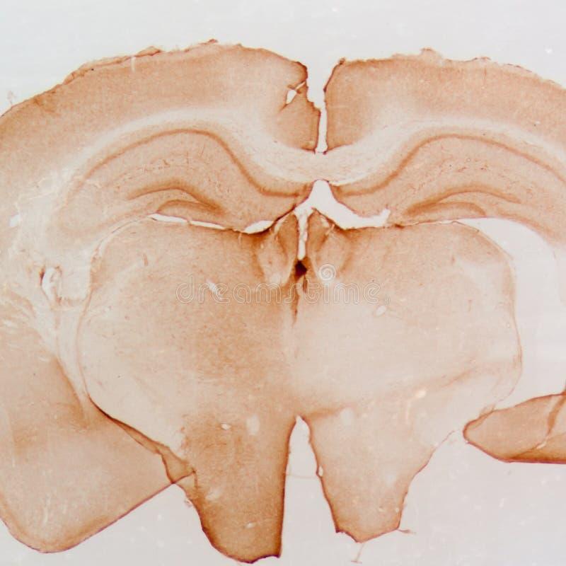 Free Micrograph Of Rat Brain Stock Image - 37007861